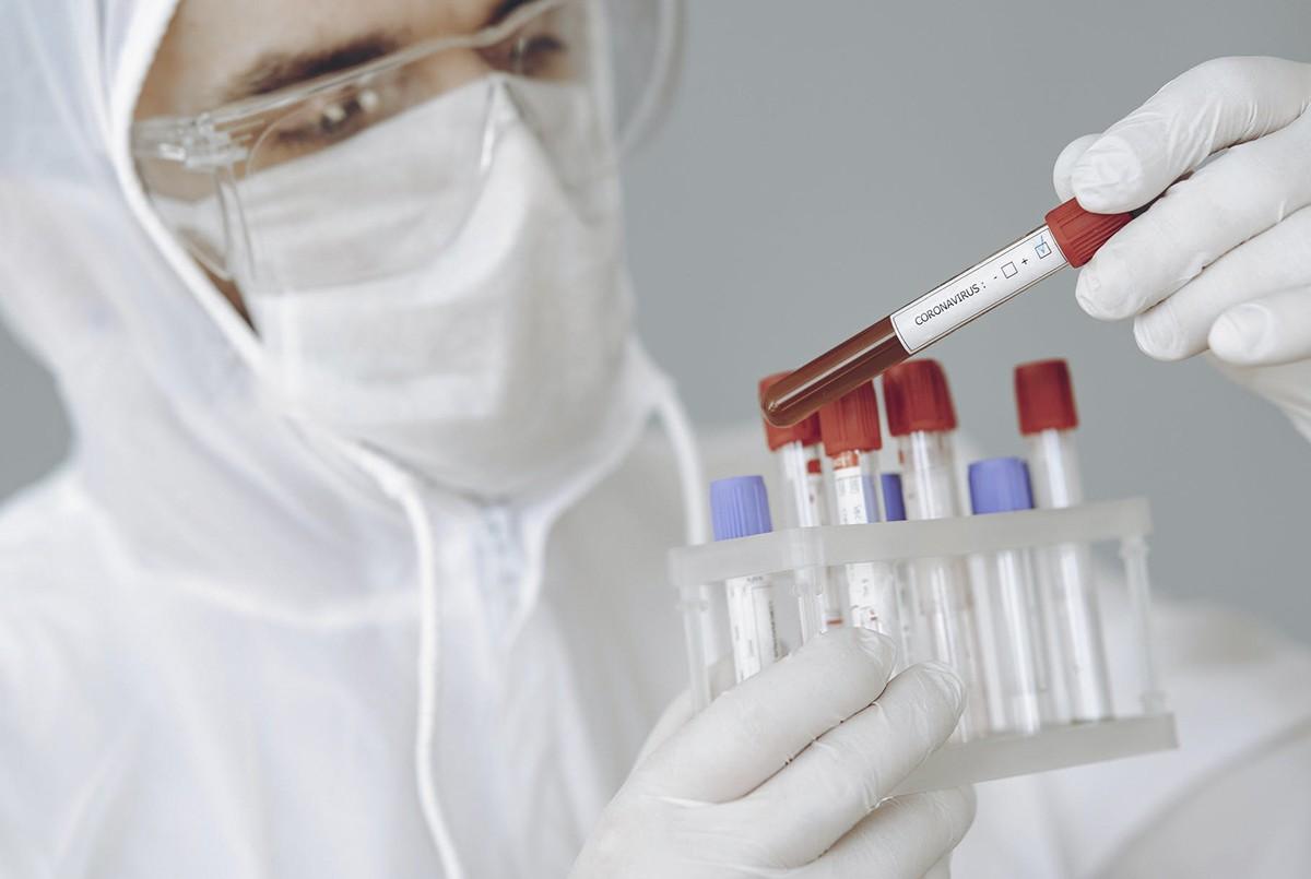 Тесты на COVID-19 в униклинике КФУ