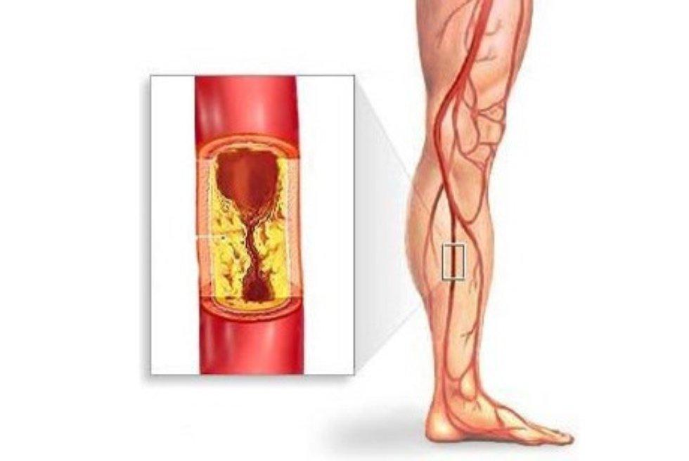 когда ампутируют ногу при диабете